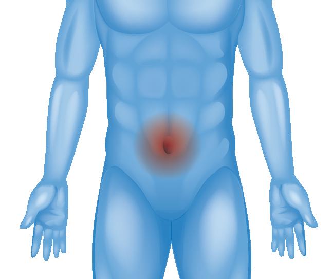 Hernia in navel