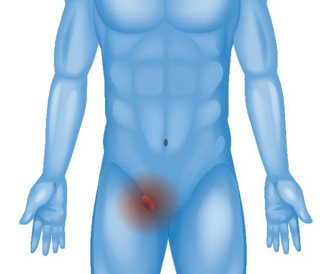 Hernia in inner groin