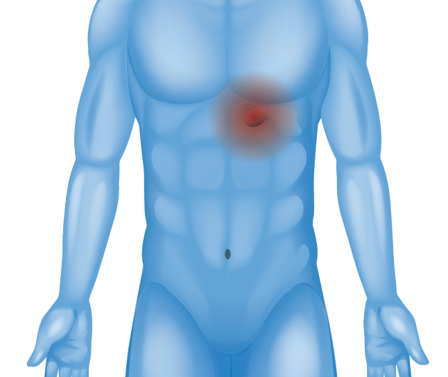 Hernia in lower chest