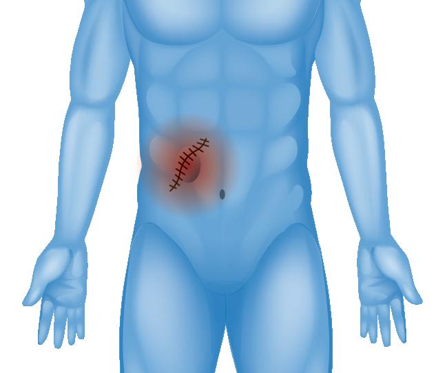 Abdominal scar illustration