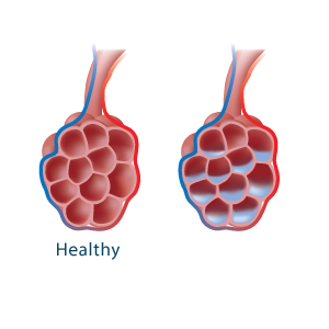 Alveoli with accumulated fluid