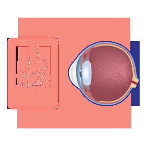 Impaired vision diagram