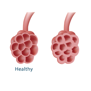Illustration of a healthy and unhealthy alveoli